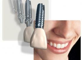 Implantaten