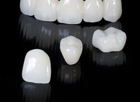 CIRKONIUMOXID: a modern fogpótlás legnagyszerűbb tulajdonságú anyaga
