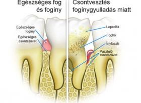 parodontológia